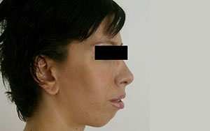 Lifting Facial - Dupa